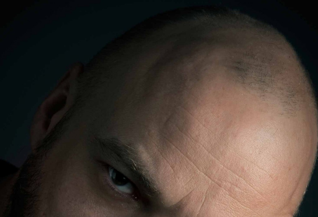Hair transplant surgery Toulouse