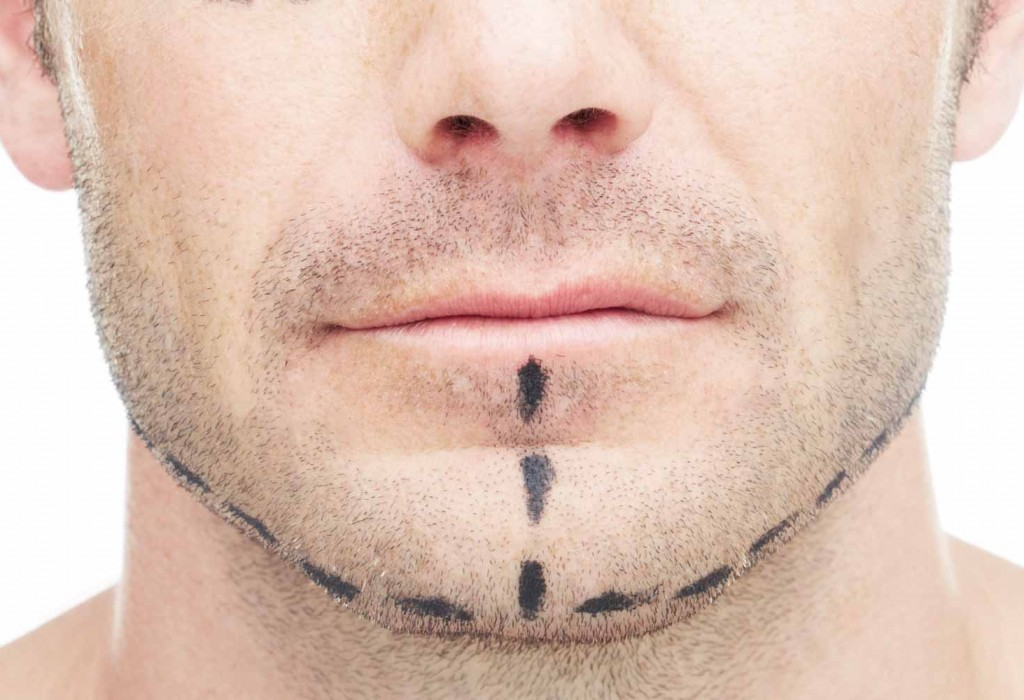CERVICO FACIAL LIFTING Toulouse France