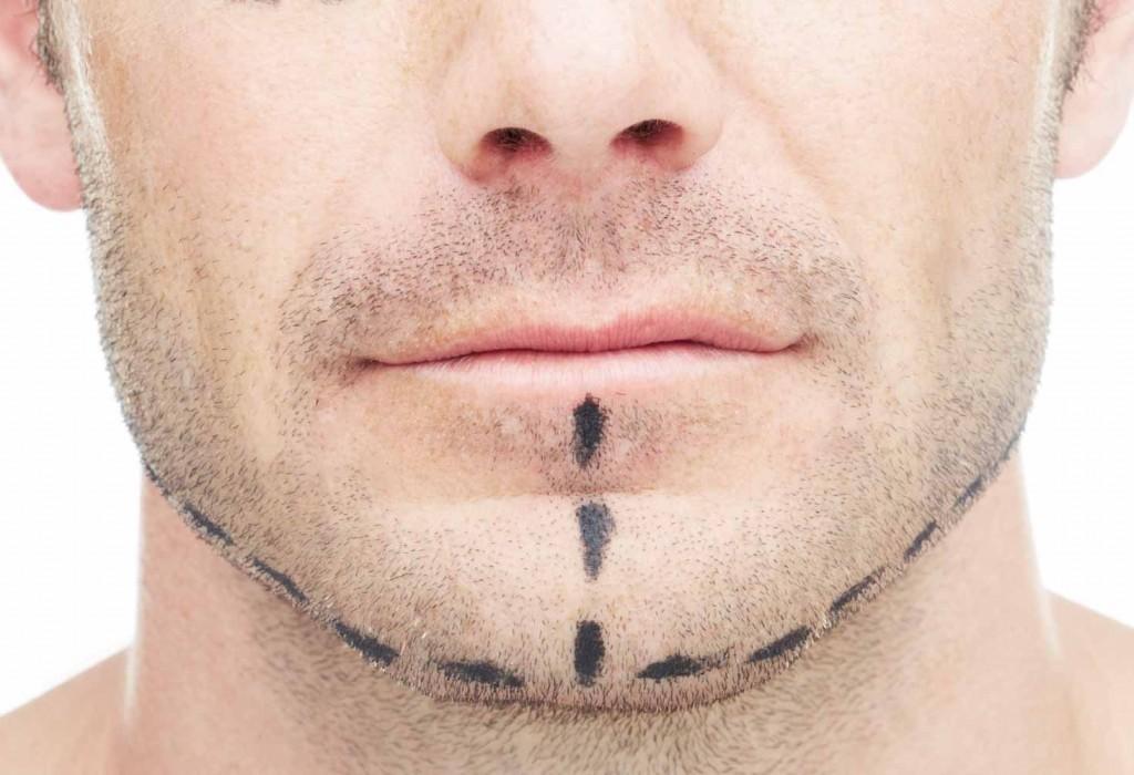 Lifting cervico-facial pour homme à Toulouse