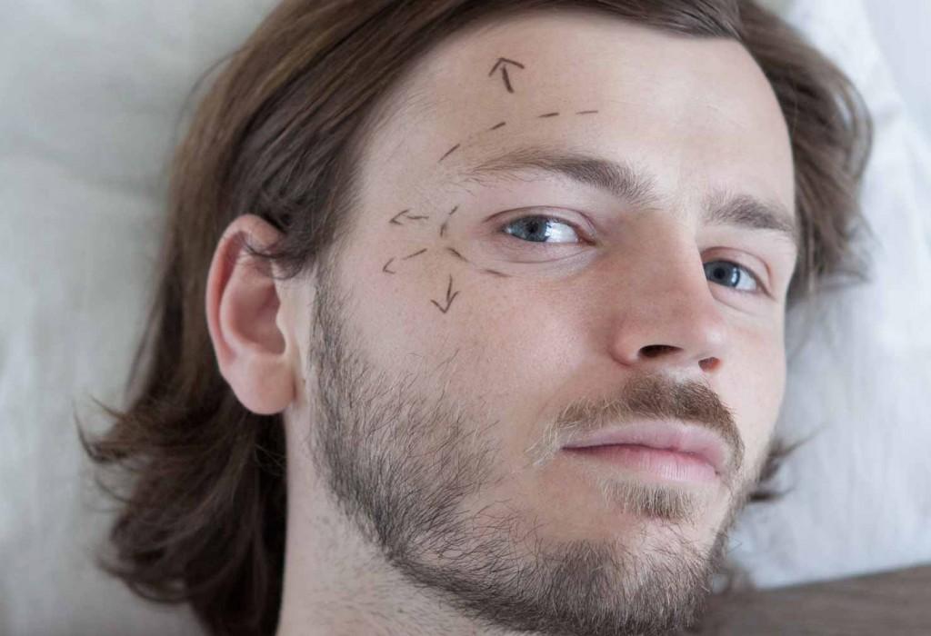Lifting facial endoscopique à Toulouse