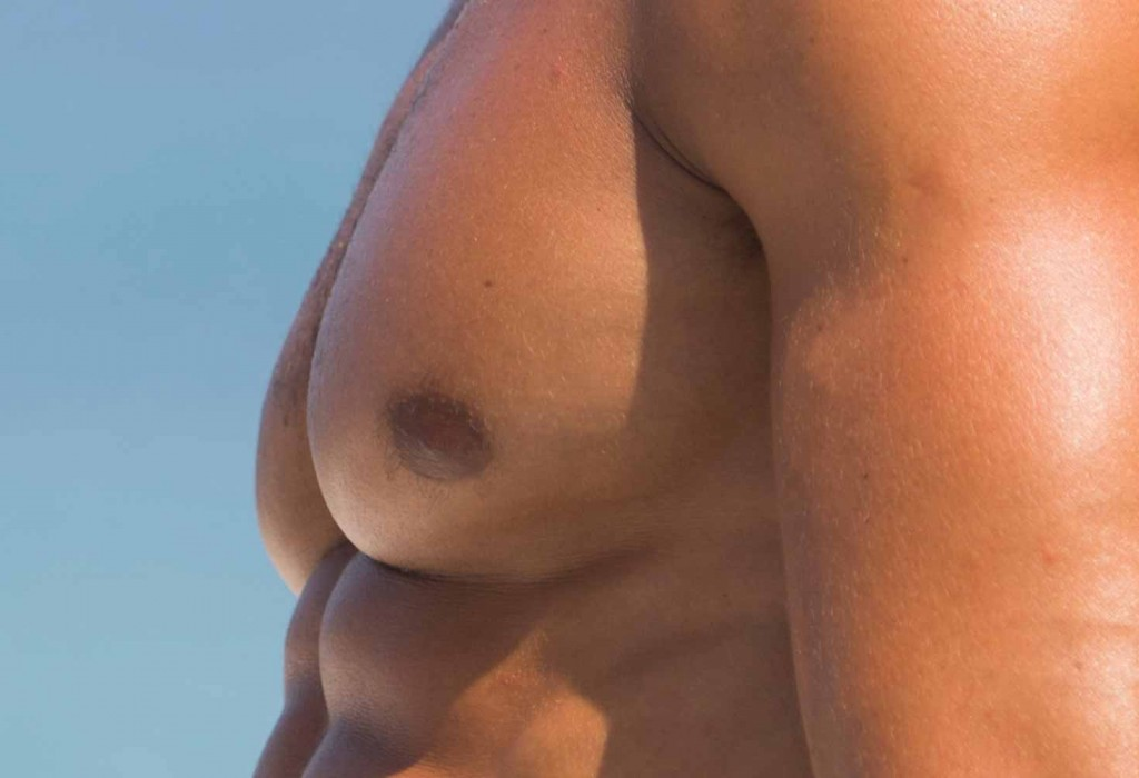 Gynecomasty Toulouse France