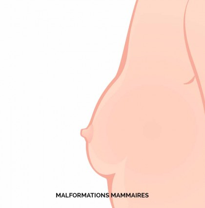 MALFORMATIONS MAMMAIRES