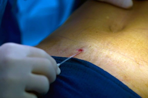 Dermolipectomie abdominale antérieure Toulouse