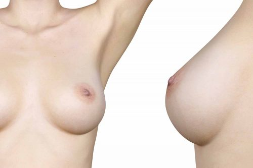HYPERTROPHIC BREAST