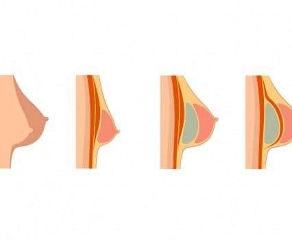 prothèses mammaires - pose