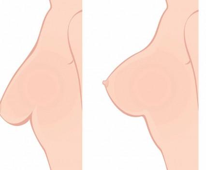 chirurgie de la ptôse mammaire