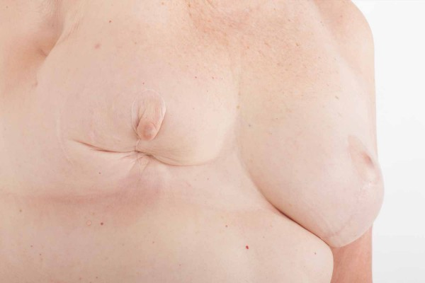 Reconstruction mammaire après cancer - Docteur Vasse Toulouse