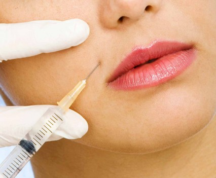 Injection de toxine botulique - lèvres