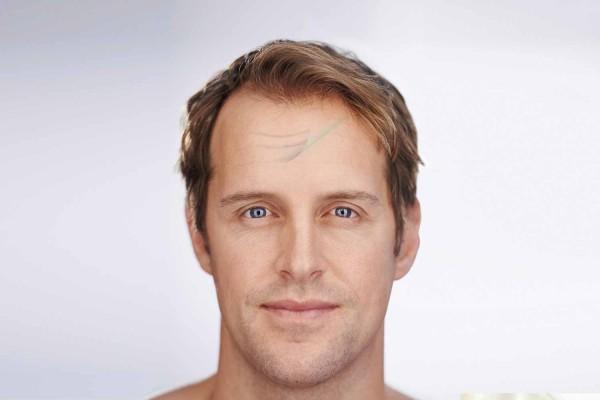 Chirurgie morphologique de la face à Toulouse