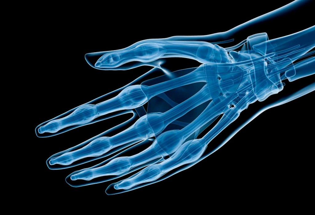 Radio chirurgie de la main