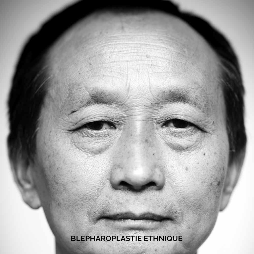 Blépharoplastie ethnique homme