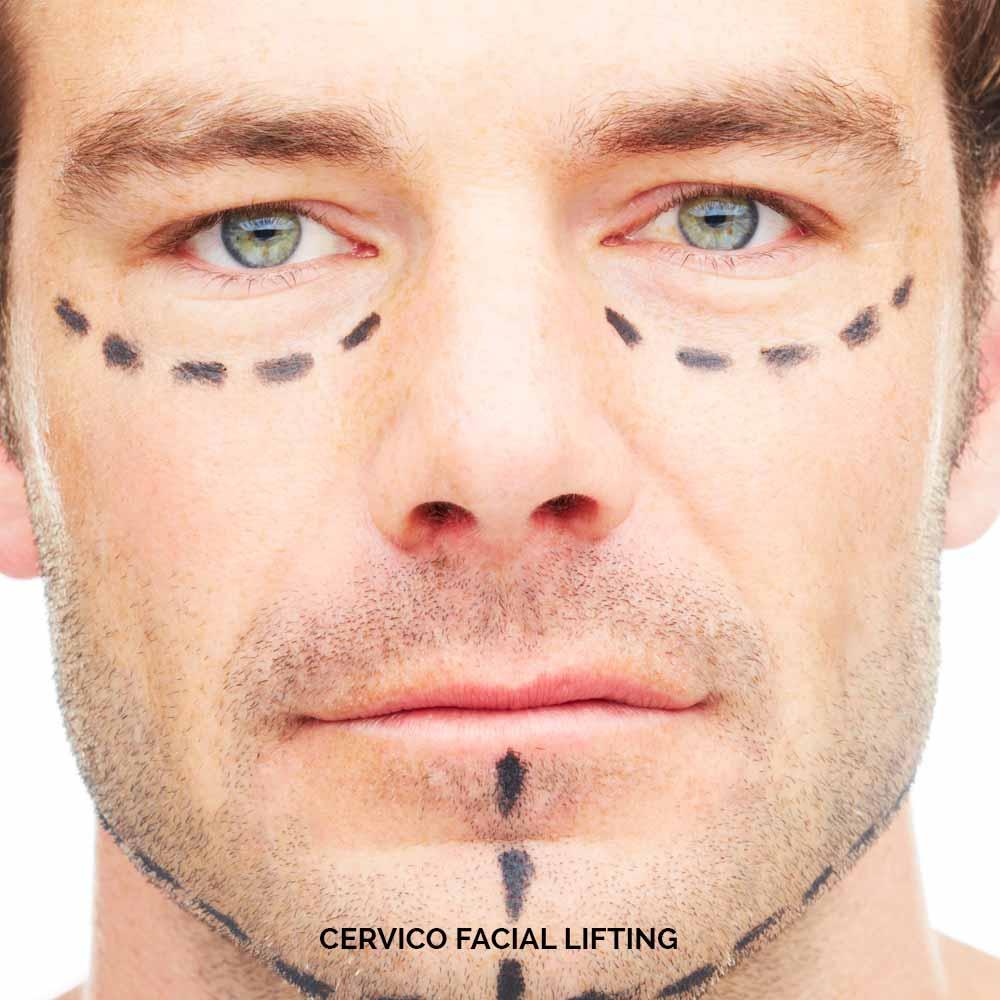 CERVICO FACIAL LIFTING