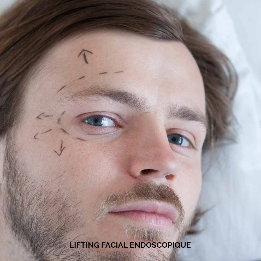 Lifting facial endoscopique pour homme