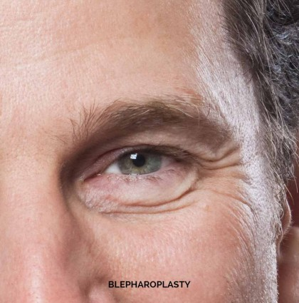 EYE SURGERY OR BLEPHAROPLASTY